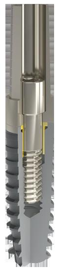 Implantologia dentale protesi impianti dentali sistema implantare Matrix - Linea Inthex img01