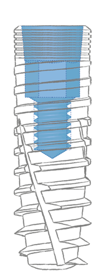 Impianto conico R Conex Matrix Bioservice