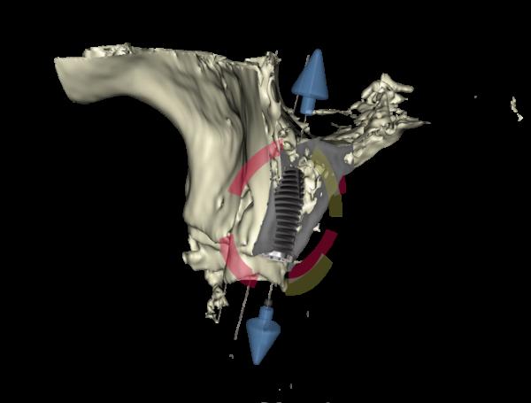 Implantologia dentale protesi impianti dentali sistema implantare Matrix - progettazione