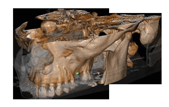 Implantologia dentale protesi impianti dentali sistema implantare Matrix - scan